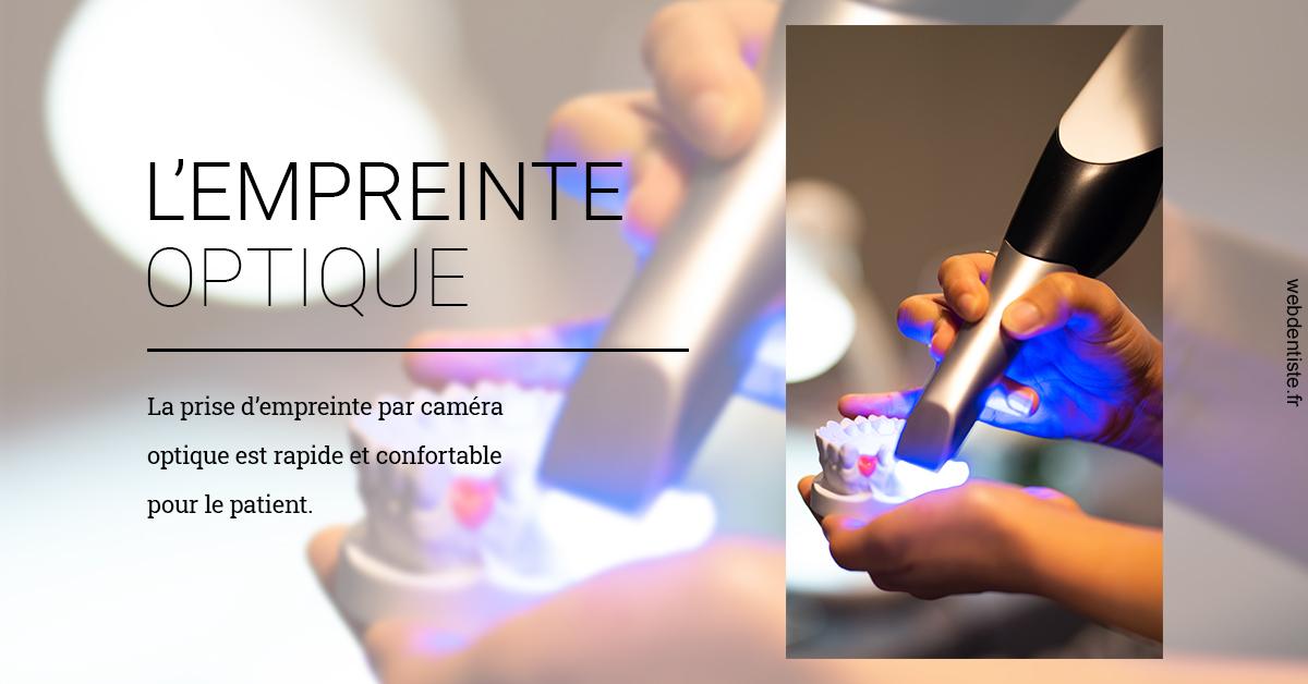 https://www.dentiste-bruxelles-iovleff.be/L'empreinte Optique 2